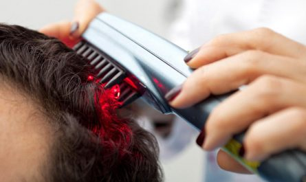 laser hair combs